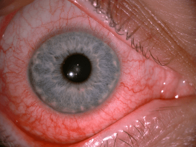 The Eye Health Centre - Case of the Week