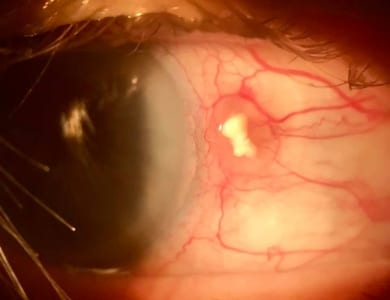 The Eye Health Centre - Interesting Eye Case........
