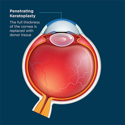 The Eye Health Centre - Corneal Transplants