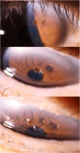 The Eye Health Centre - Eye Case of the Week