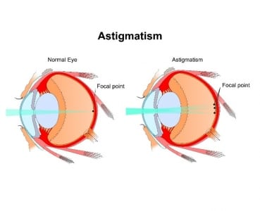 Astigmatism Diagram for Brisbane Patients