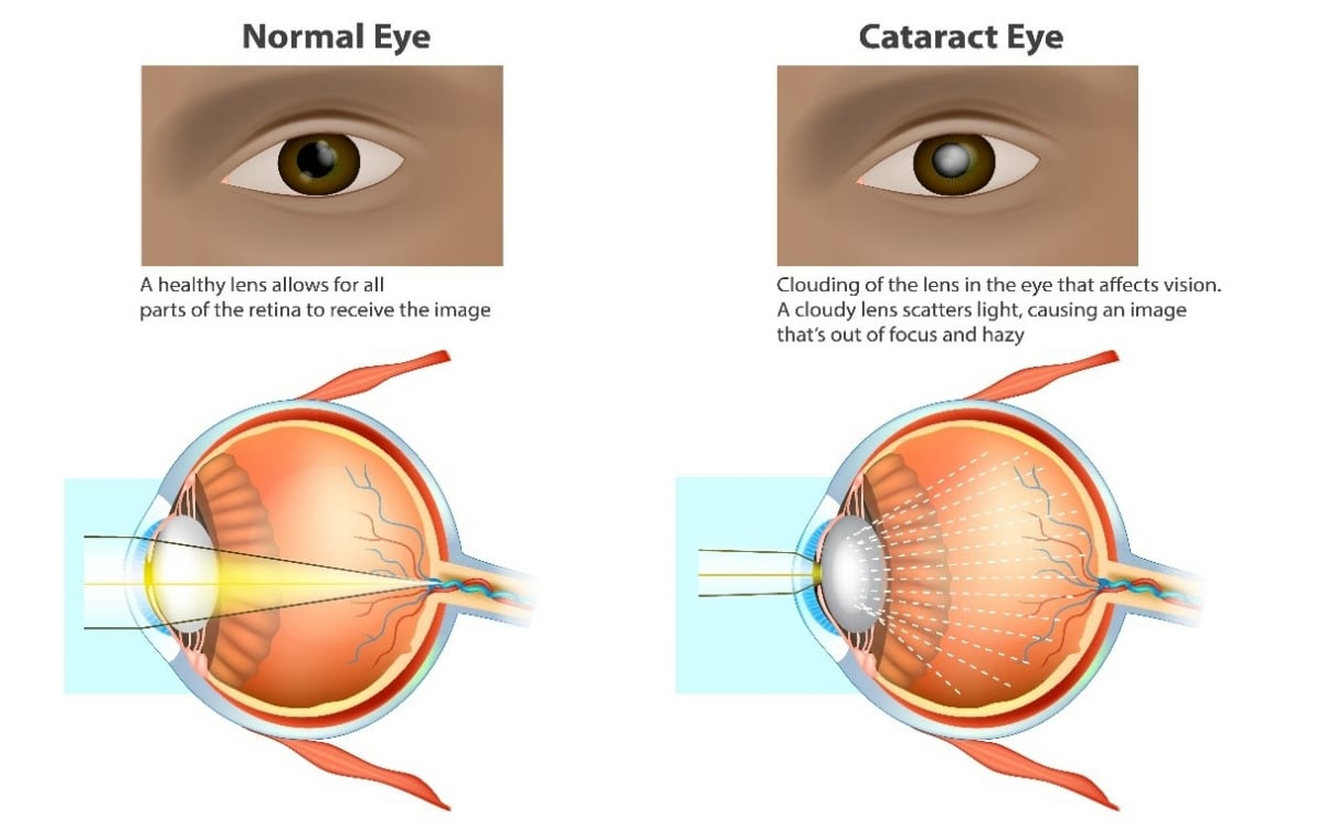 How Cataracts affect patients