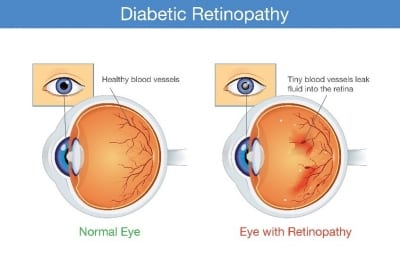 Dry Eye Disease Overview Infographic