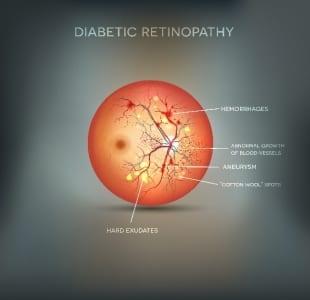 Diabetic Retinopathy Infographic