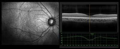 Diagnosing Retinal Vascular Disease
