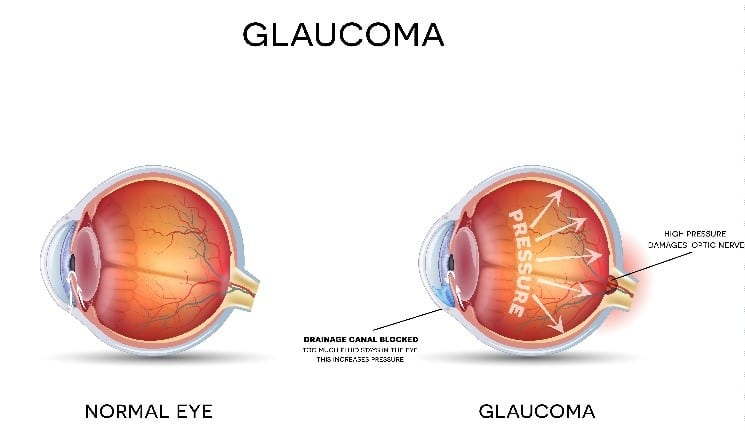 Glaucoma Symptoms Diagram