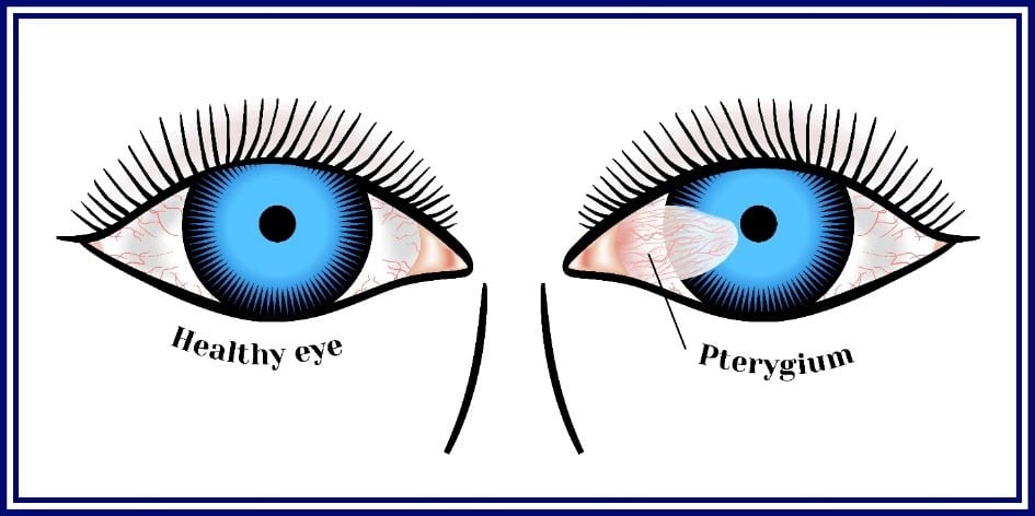 Pterygium Surgery Diagram