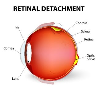 Retinal Detachment Infographic